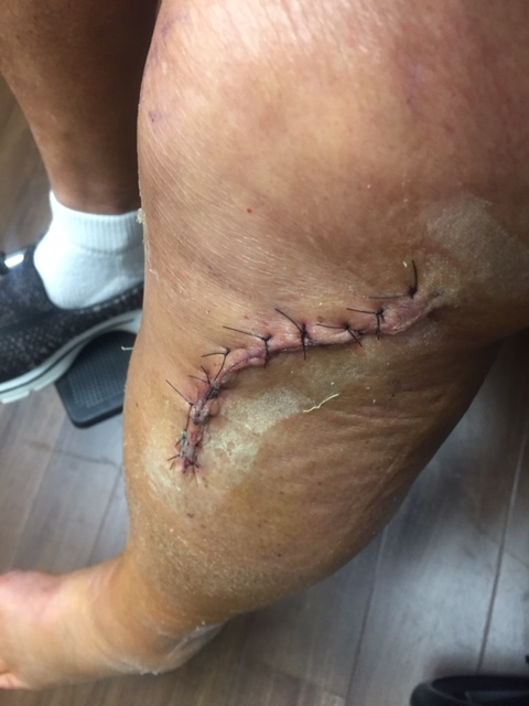 Knee Surgery Before