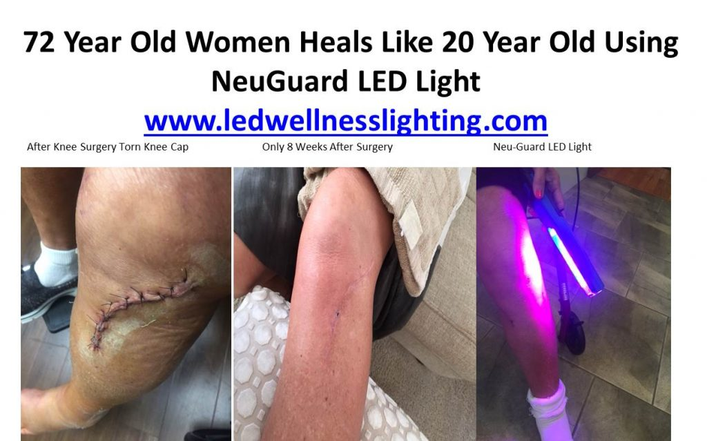 blue and red light technology speed heals wound in 72 year old women